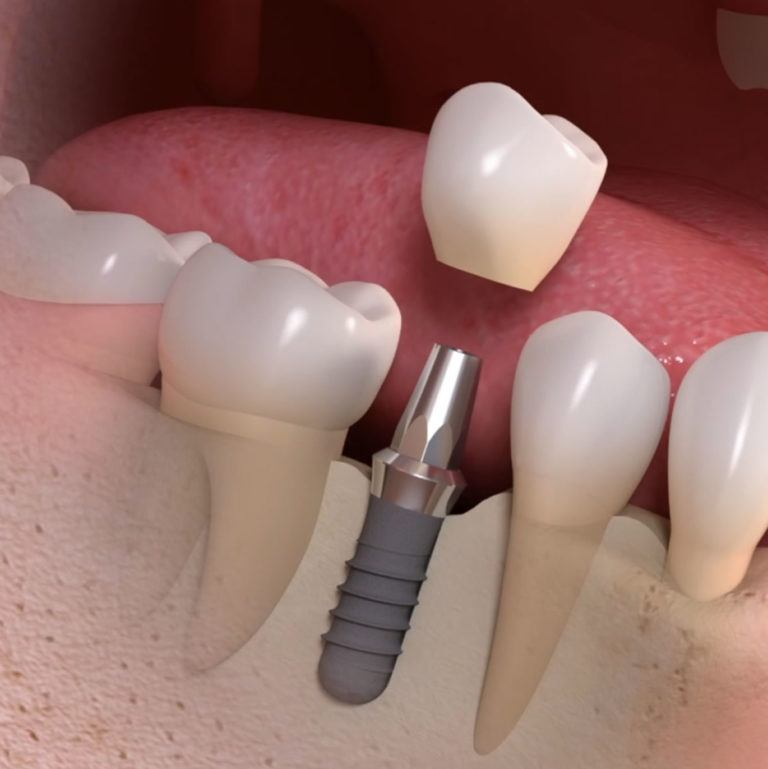 Local Dentists for Dental Implant Costs